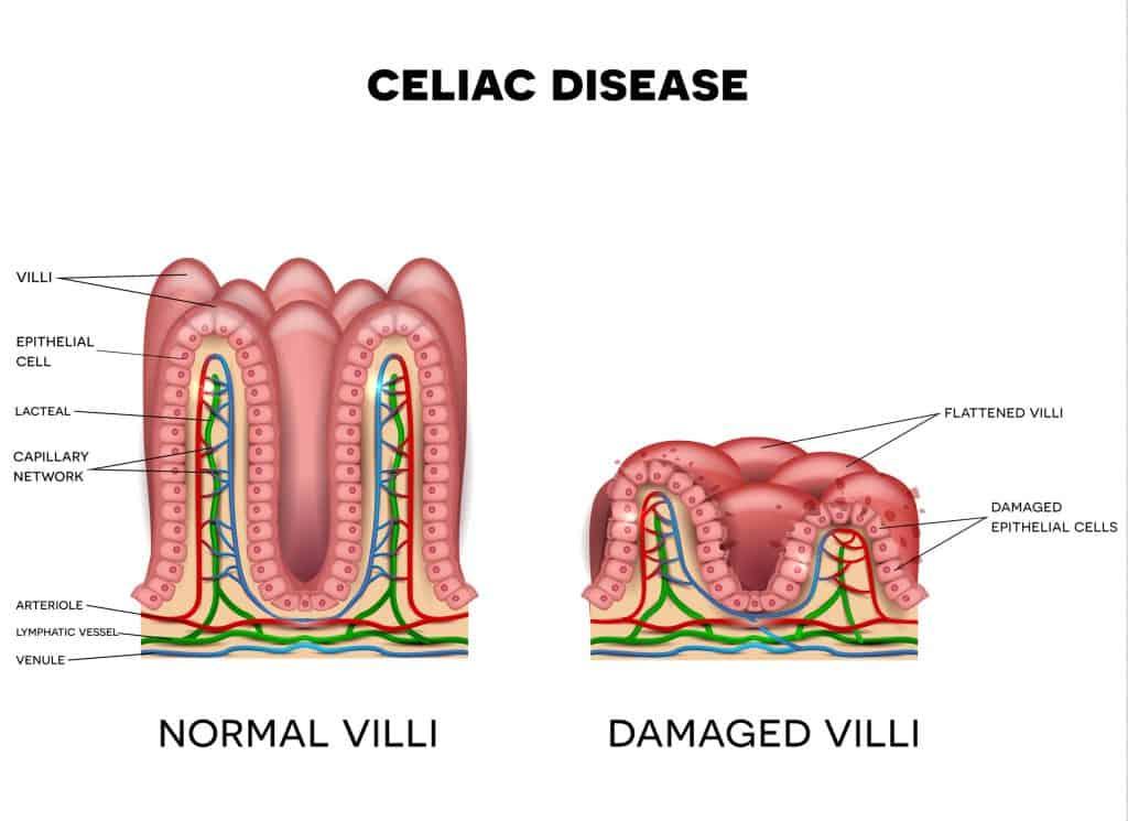 Diabetes and Celiac Disease