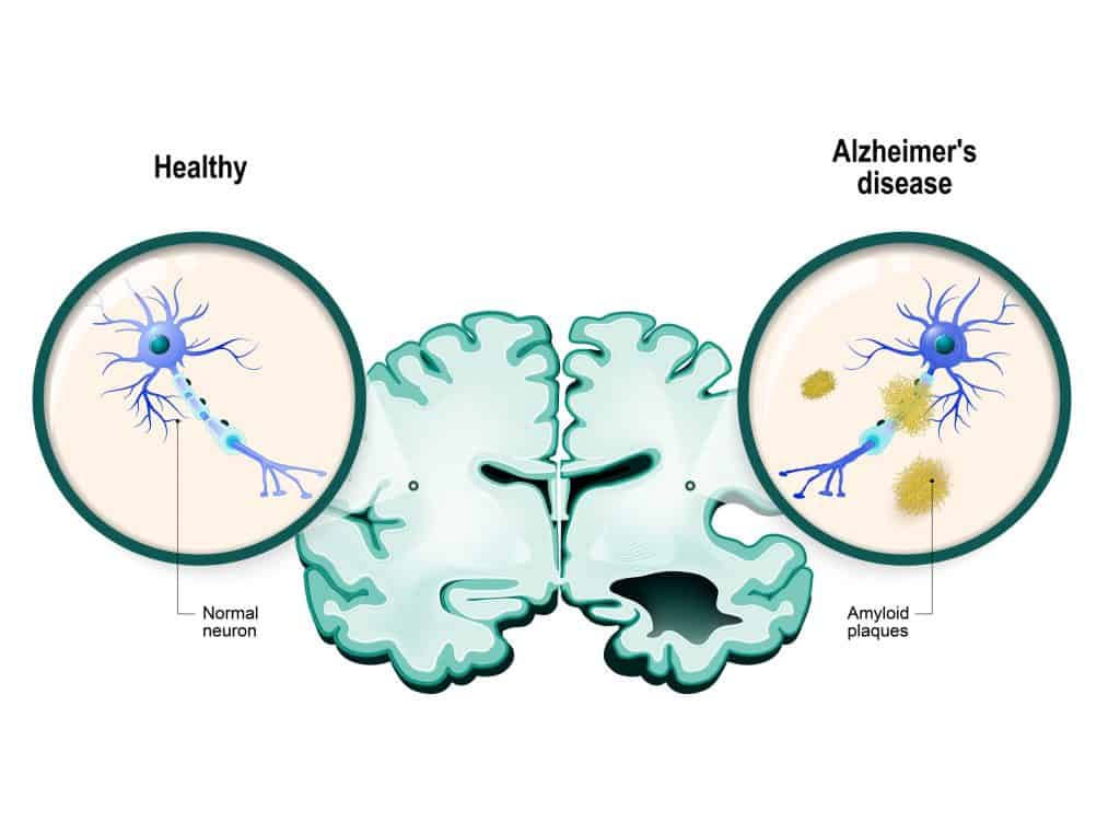 Diabetes and Alzheimer's