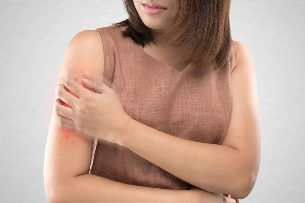 Chronic Skin Conditions