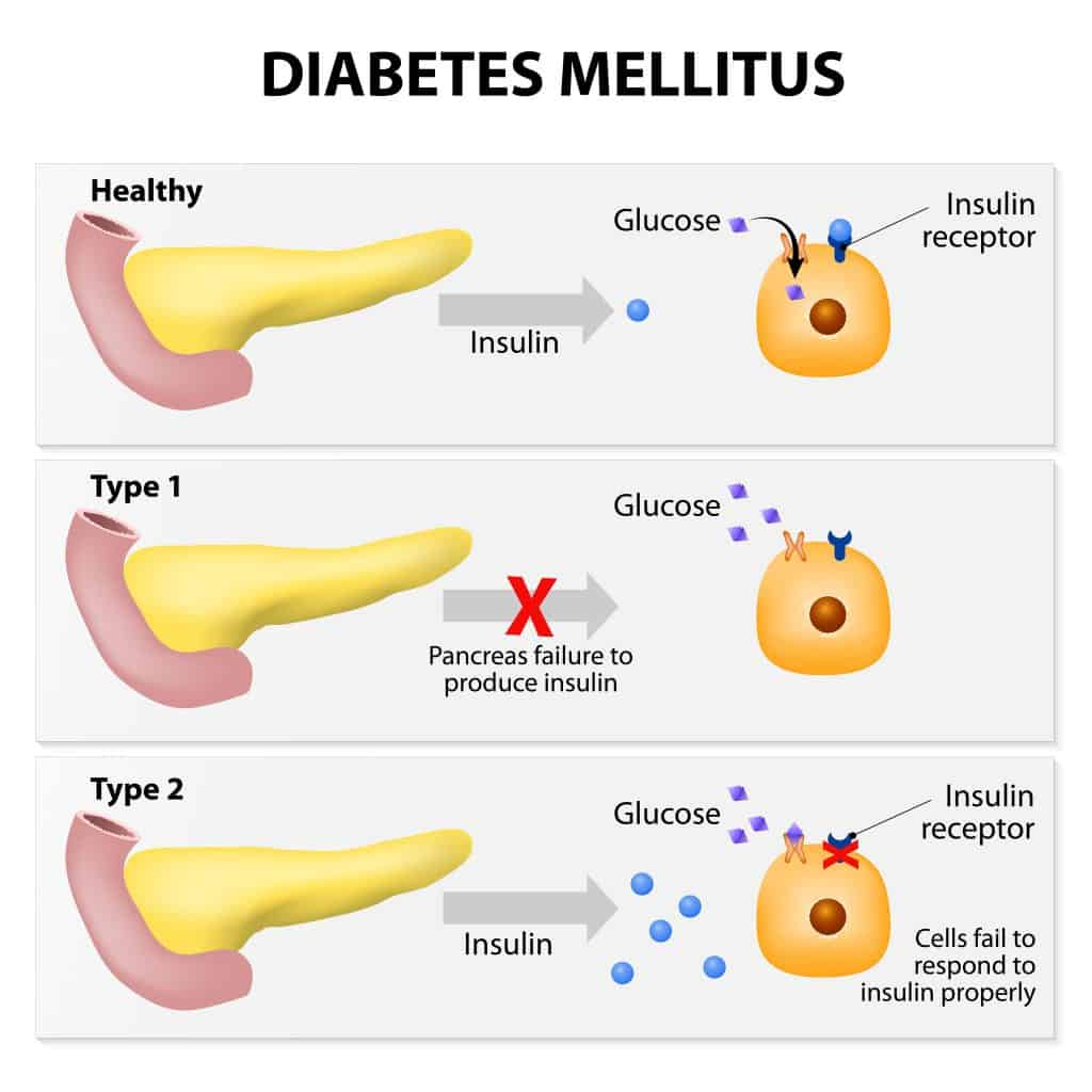 Does the Pancreas Produce Insulin