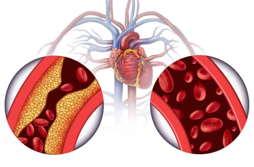 Does Aspirin Help with Cholesterol